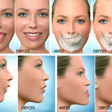 Cirurgia Ortognática une benefícios estéticos e funcionais